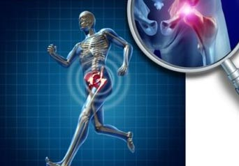 Stem cell therapy may benefit arthritis patients